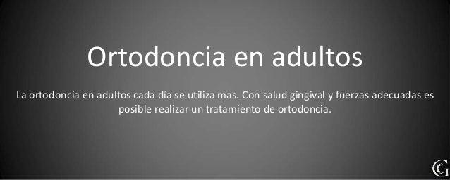 Ortodoncia en adultosLa ortodoncia en adultos cada día se utiliza mas. Con salud gingival y fuerzas adecuadas es          ...
