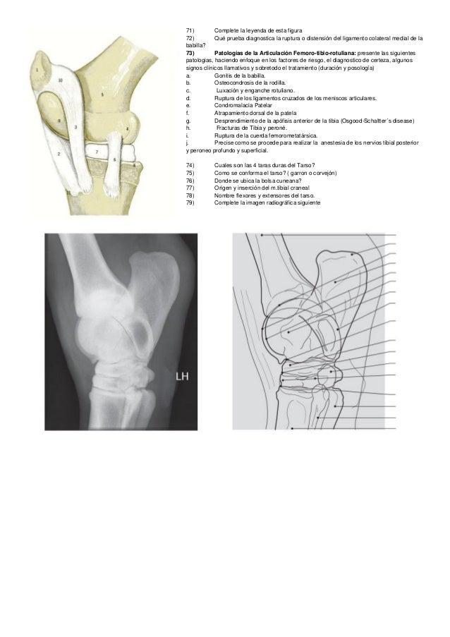 Los tratamientos de la crisis en sheynom el departamento de la columna vertebral