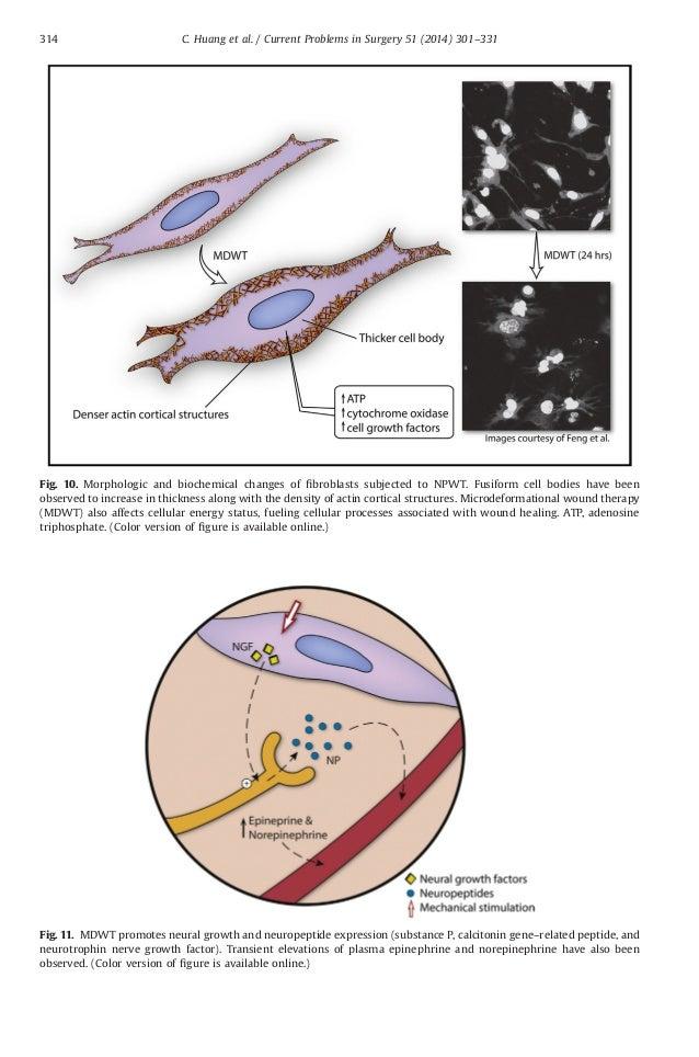 negative pressure wound therapy pdf