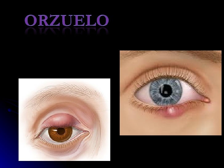    Es la infección bacteriana aguda de una    o más glándulas (glándula de Zeiss, Moll    o las de Meibomio) palpebrales.