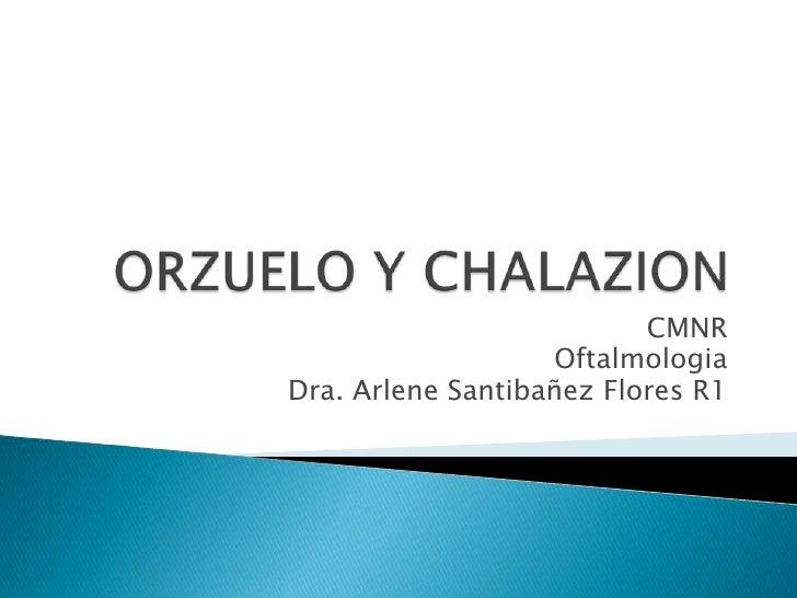 CMNR                   OftalmologiaDra. Arlene Santibañez Flores R1
