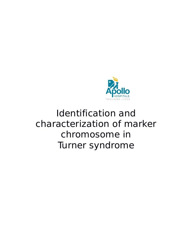 Identification and characterization of marker chromosome in Turner syndrome