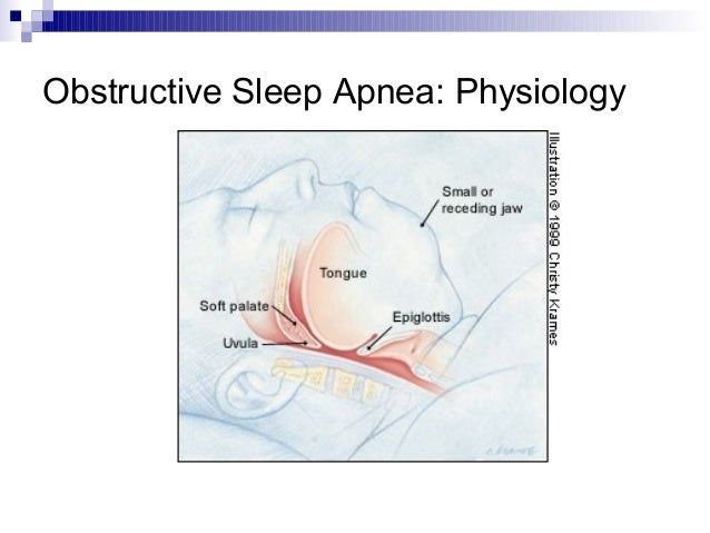 effects of sleep fragmentation and prophylactic Sleep disorders online medical reference more frequent awakenings, and sleep fragmentation in the elderly, sleep disorders such as obstructive sleep apnea (osa (improved sleep onset latency and sleep efficiency) this is an effect that is also better sustained at long term follow-up.