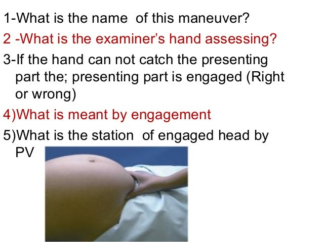 1-What is the name of this maneuver? 2 -What is the examiner's hand assessing? 3-If the hand can not catch the presenting ...