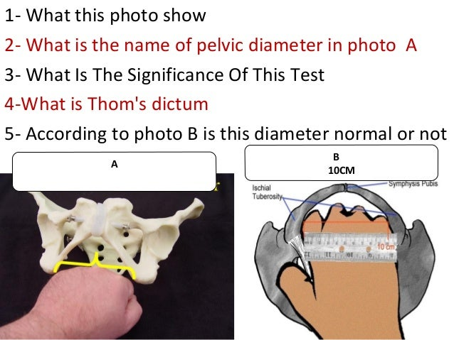 A 1- What this photo show 2- What is the name of pelvic diameter in photo A 3- What Is The Significance Of This Test 4-Wha...