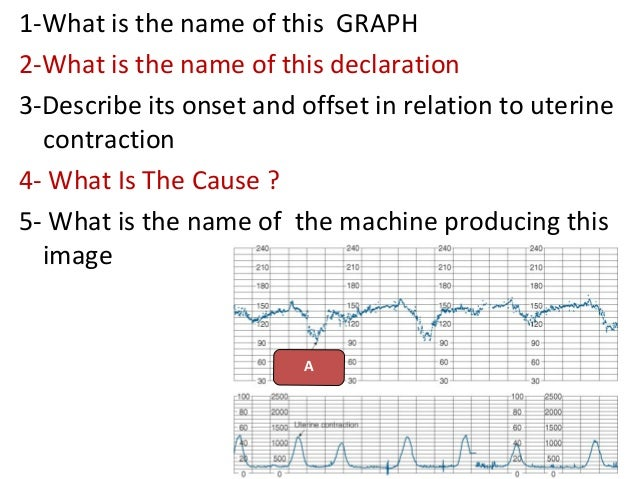 1-What is the name of this GRAPH 2-What is the name of this declaration 3-Describe its onset and offset in relation to ute...