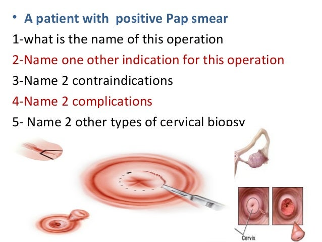 • A patient with positive Pap smear 1-what is the name of this operation 2-Name one other indication for this operation 3-...
