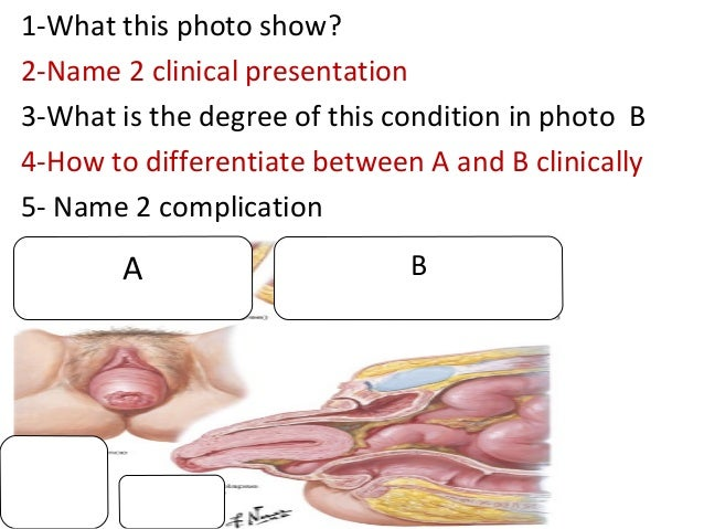 1-What this photo show? 2-Name 2 clinical presentation 3-What is the degree of this condition in photo B 4-How to differen...