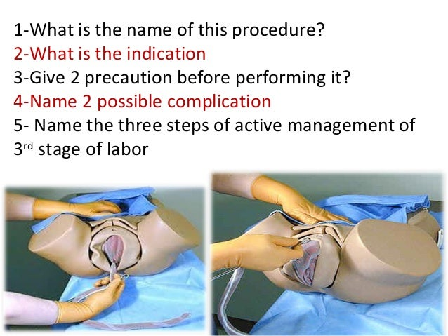 1-What is the name of this procedure? 2-What is the indication 3-Give 2 precaution before performing it? 4-Name 2 possible...