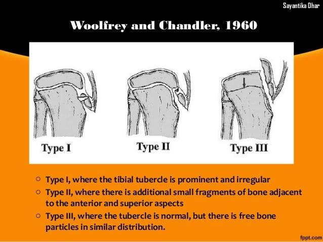 Superior Patellar Dislocation Superior Dislocation Of Jaw ...