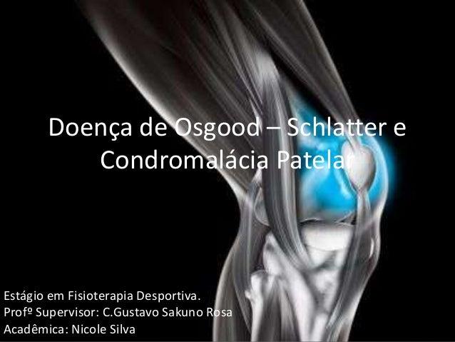 Doença de Osgood – Schlatter e Condromalácia Patelar Estágio em Fisioterapia Desportiva. Profº Supervisor: C.Gustavo Sakun...