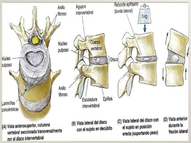 Ddi de la columna vertebral sheynogo del departamento de la columna vertebral