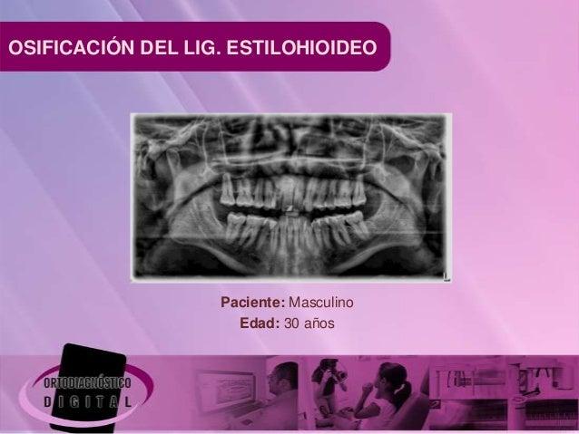 OSIFICACIÓN DEL LIG. ESTILOHIOIDEO                   Paciente: Masculino                     Edad: 30 años
