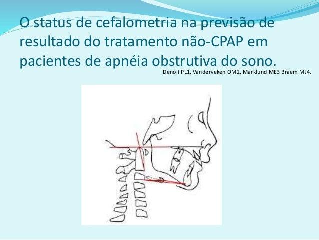 O status de cefalometria na previsão de resultado do tratamento não-CPAP em pacientes de apnéia obstrutiva do sono. Denolf...