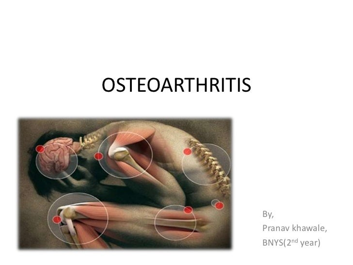 OSTEOARTHRITIS                 By,                 Pranav khawale,                 BNYS(2nd year)