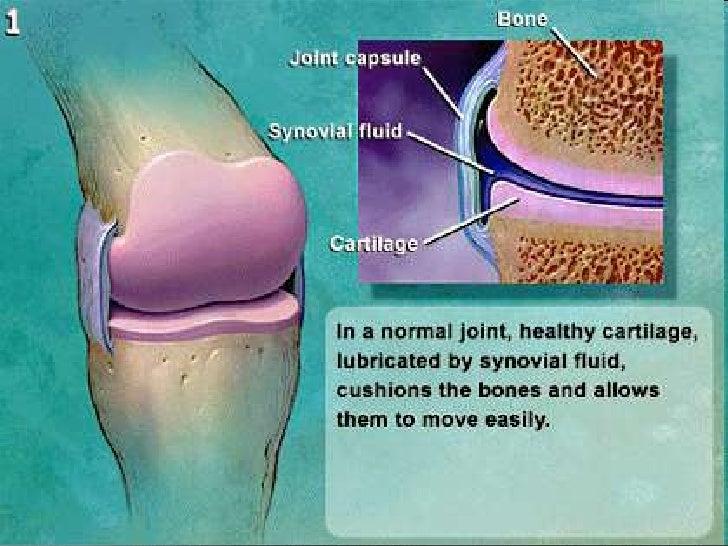 Durere la nivelul abdomenului inferior care radiaza la nivelul spatelui ?i la cauzele grea?a