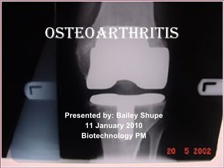 Osteoarthritis Presented by: Bailey Shupe 11 January 2010 Biotechnology PM
