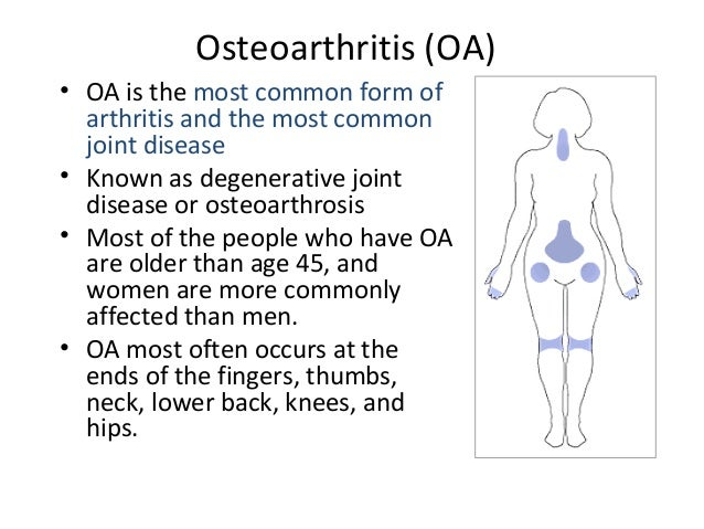 degenerative joint disease or osteo arthritis nursing essay Sometimes it is called degenerative joint disease osteoarthritis mostly  nursing, dentistry  and healthy with the disease people with osteoarthritis should.