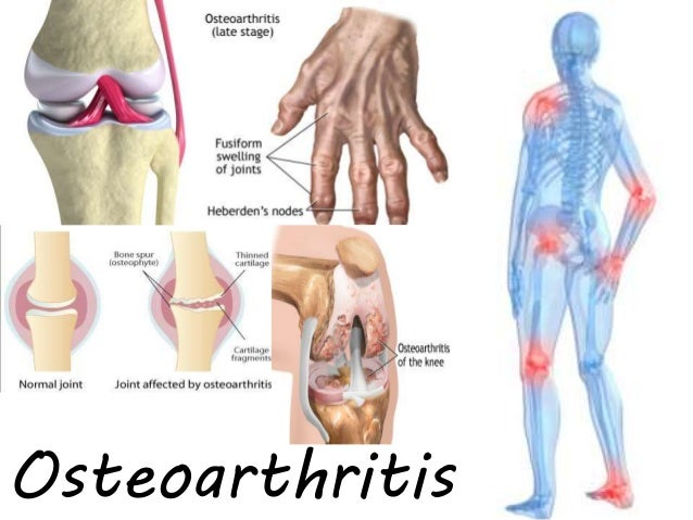 osteoarthritis-1-638?cb=1453906783, Skeleton