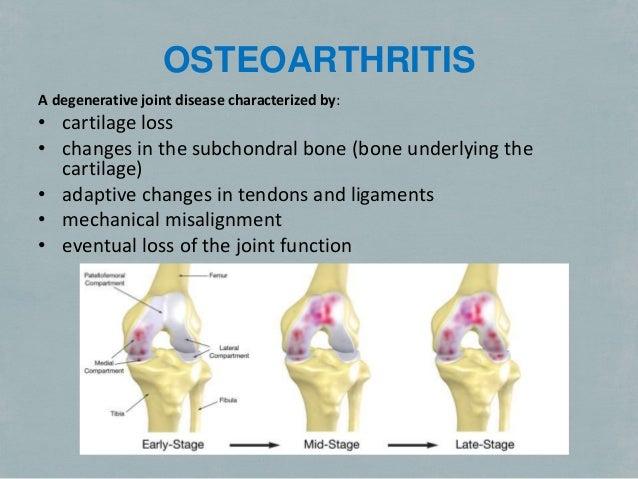 Osteoarthritis Treatment Alternatives Slide 3