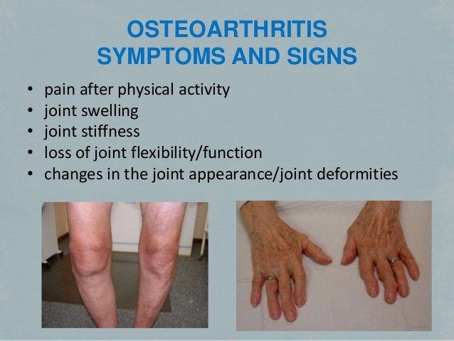 a study on the cause and treatment of knee osteoarthritis Cohort study using the osteoarthritis initiative (oai) database compares patient outcomes to evaluate the effectiveness of total knee replacement surgery for osteoarthritis.