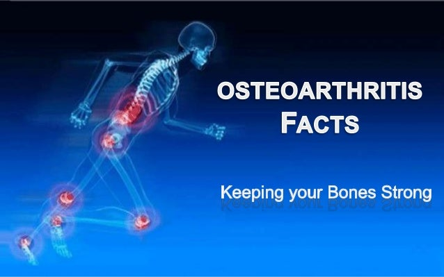 Osteoarthritis is the weakening of bones,which can lead to painful spinefractures, a broken wrist, or hip breaks.Its most ...