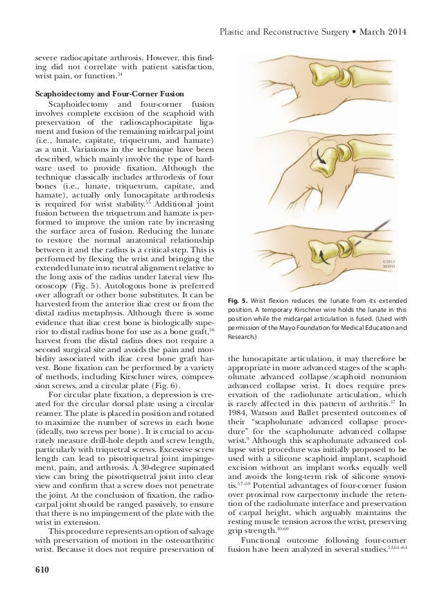 Osteoarthritis of the_wrist from Mayo Clinic