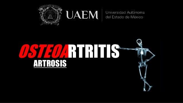 OSTEOARTRITIS ARTROSIS
