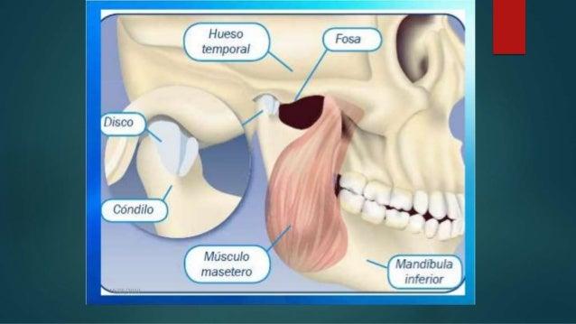 artrosis mandibular tratamiento