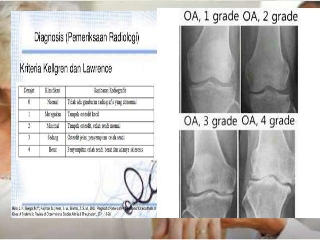Gambaran Radiologi Chf