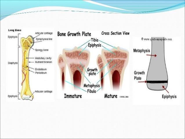 Mal di testa a ernia di reparto cervicale di un trattamento di spina dorsale