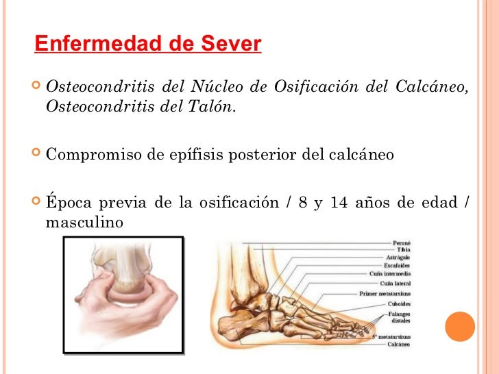 La inestabilidad sheynogo del departamento de la columna vertebral a los adultos