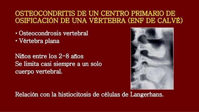 Que puede dar la osteocondrosis del tórax