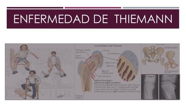 Los dolores en los riñones y el vientre a beremenosti