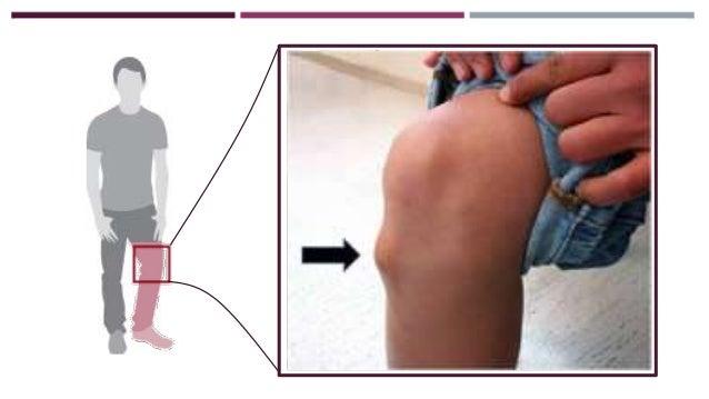 Duele la espalda después del sentar largo