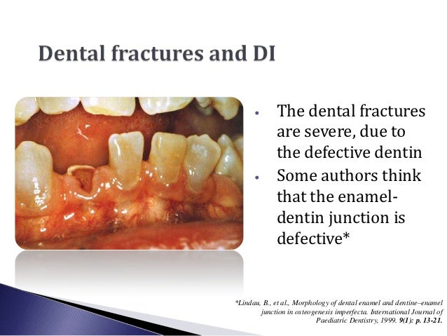 •       The dental fractures              are severe, due to              the defective dentin      •       Some authors t...