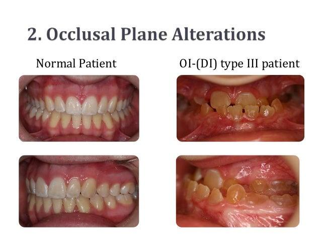 Normal Patient   OI-(DI) type III patient