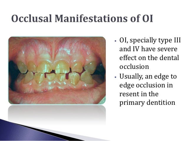 •   OI, specially type III    and IV have severe    effect on the dental    occlusion•   Usually, an edge to    edge occlu...