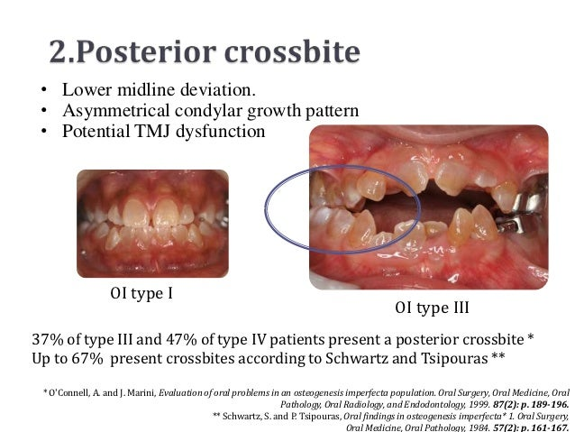 • Lower midline deviation. • Asymmetrical condylar growth pattern • Potential TMJ dysfunction                  OI type I  ...