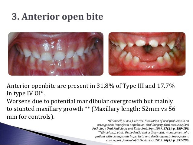 Anterior openbite are present in 31.8% of Type III and 17.7%in type IV OI*.Worsens due to potential mandibular overgrowth ...