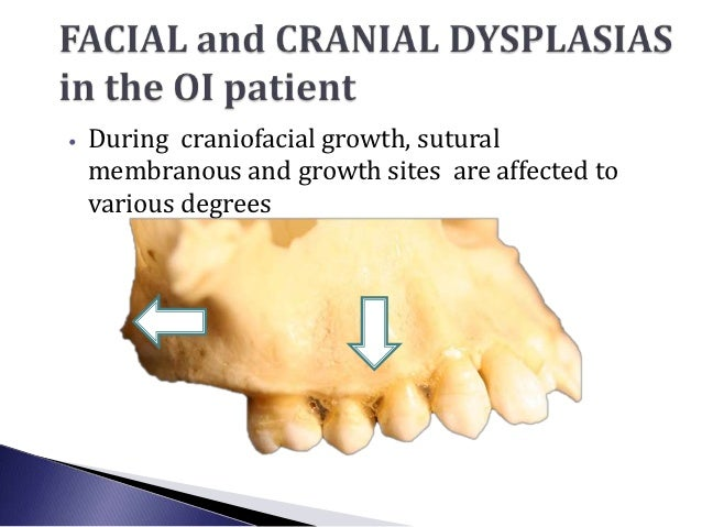 •   During craniofacial growth, sutural    membranous and growth sites are affected to    various degrees