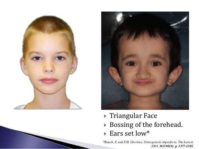 •     Type I:      o Slight reduction of size of jaws and skull (WNL)•     Type III and IV:      o Flattened cranial base ...