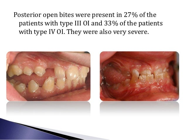    13 year old with significant    masticatory disability   Referred to our clinic by the    Shriners Hospital   Severe...