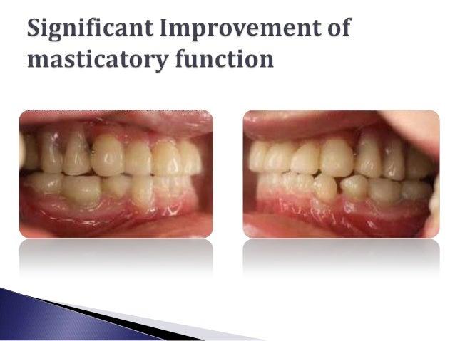 Dental management of Osteogenesis imperfecta.slideshare