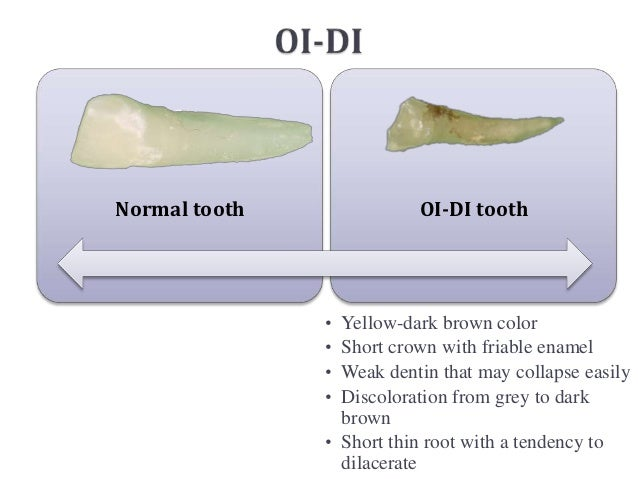 Normal tooth              OI-DI tooth               • Yellow-dark brown color               • Short crown with friable ena...