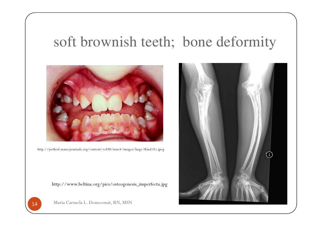 Osteogenesis Imperfecta Oi