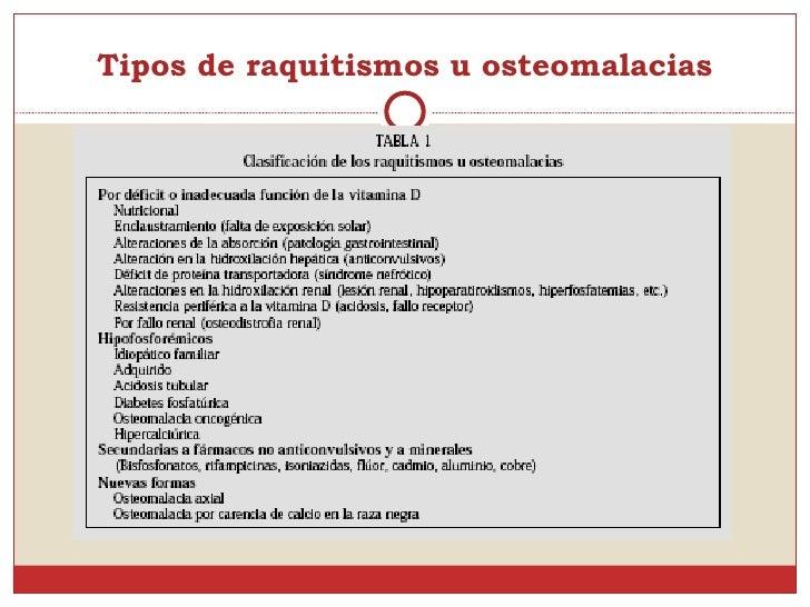Osteomalacia for Tipos de tresillos