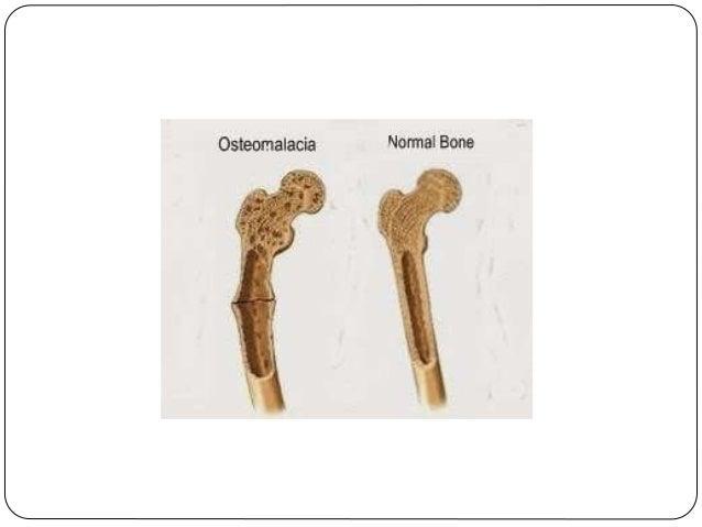 osteomalacia-3-638?cb=1436025637, Skeleton