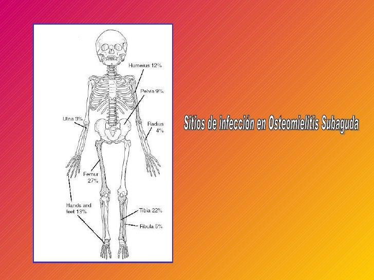 Sitios de infección en Osteomielitis Subaguda
