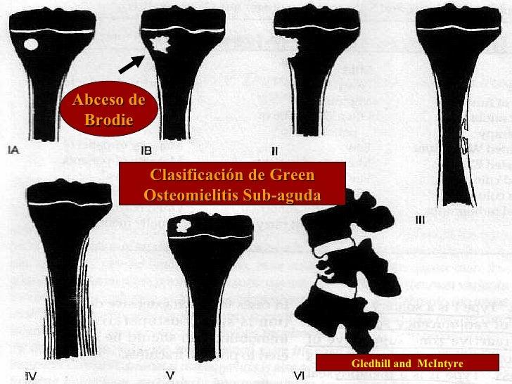 Clasificación de Green Osteomielitis Sub-aguda Abceso de Brodie Gledhill and  McIntyre